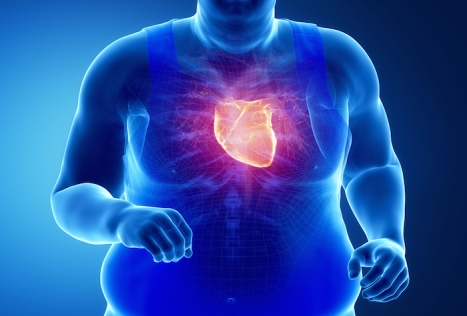 obesidad-corazón